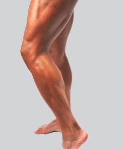 Végleges lézeres láb szőrtelenítés